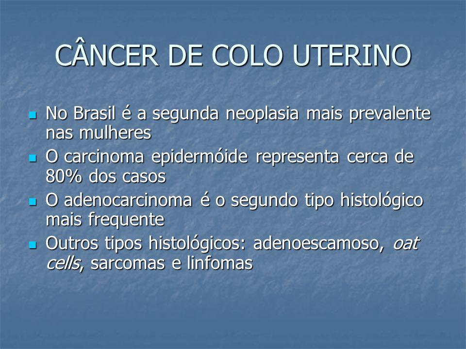 CÂNCER DE COLO UTERINO No Brasil é a segunda neoplasia mais prevalente nas mulheres. O carcinoma epidermóide representa cerca de 80% dos casos.