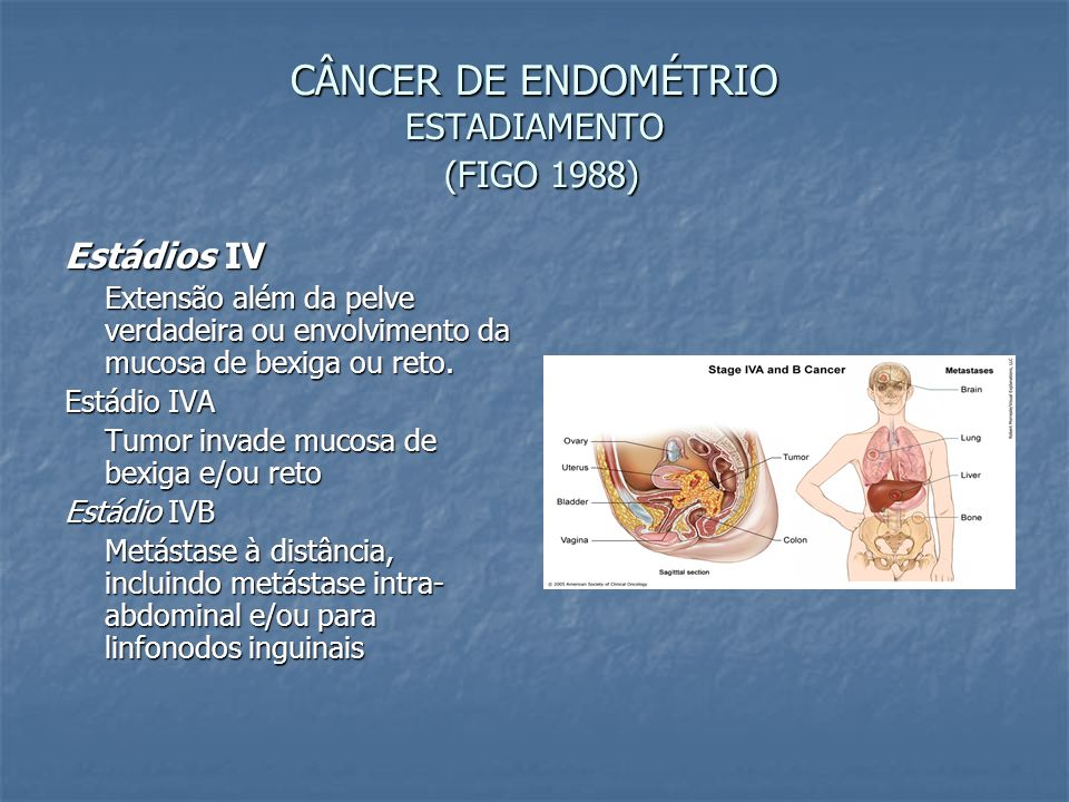 CÂNCER DE ENDOMÉTRIO ESTADIAMENTO (FIGO 1988)