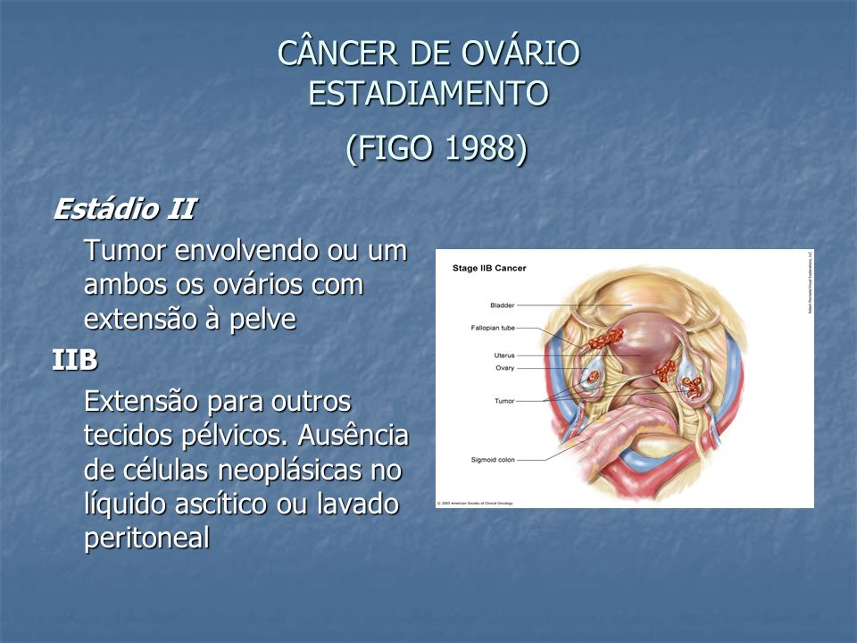 CÂNCER DE OVÁRIO ESTADIAMENTO (FIGO 1988)
