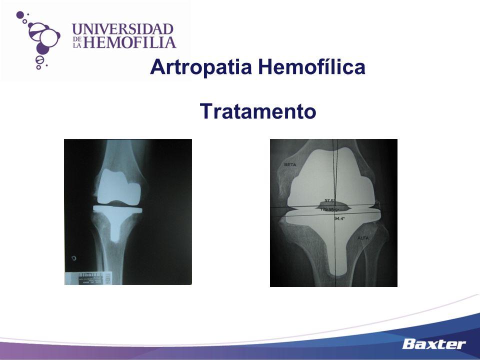 Artropatia Hemofílica Tratamento