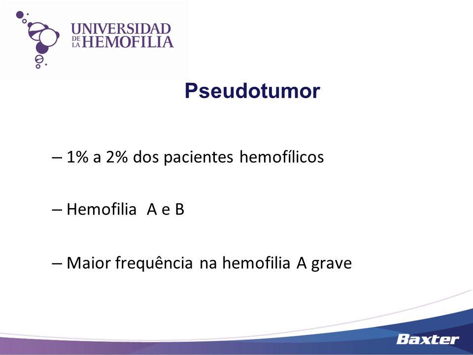 Pseudotumor 1% a 2% dos pacientes hemofílicos Hemofilia A e B