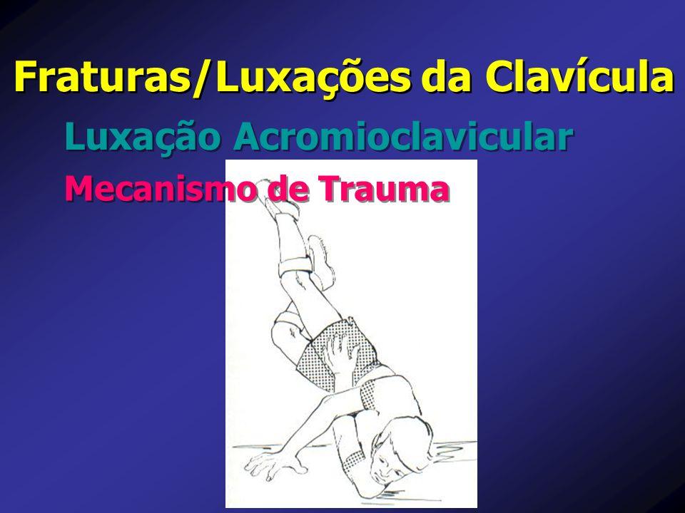 Fraturas/Luxações da Clavícula