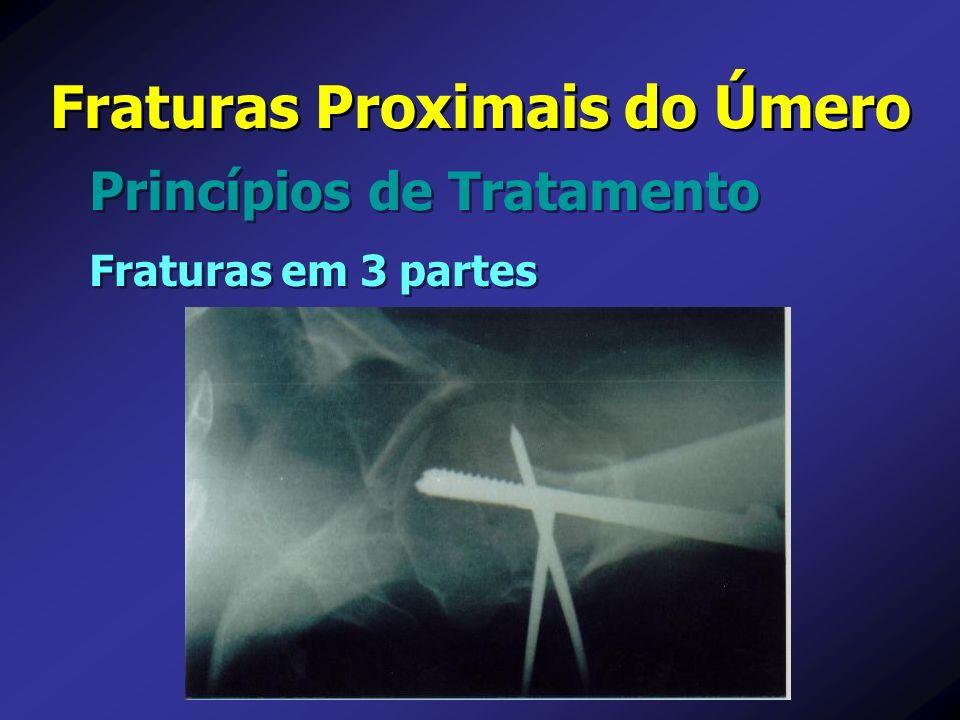 Fraturas Proximais do Úmero