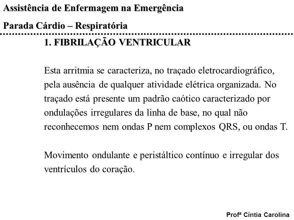 1. FIBRILAÇÃO VENTRICULAR