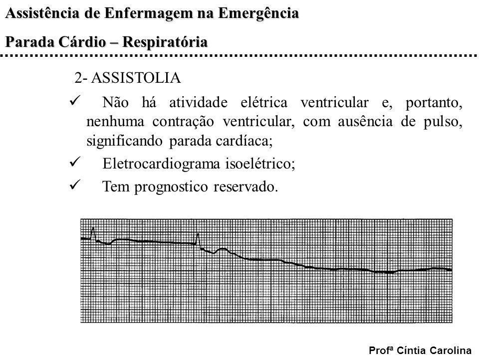 2- ASSISTOLIA Não há atividade elétrica ventricular e, portanto, nenhuma contração ventricular, com ausência de pulso, significando parada cardíaca;