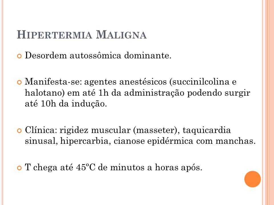 Hipertermia Maligna Desordem autossômica dominante.