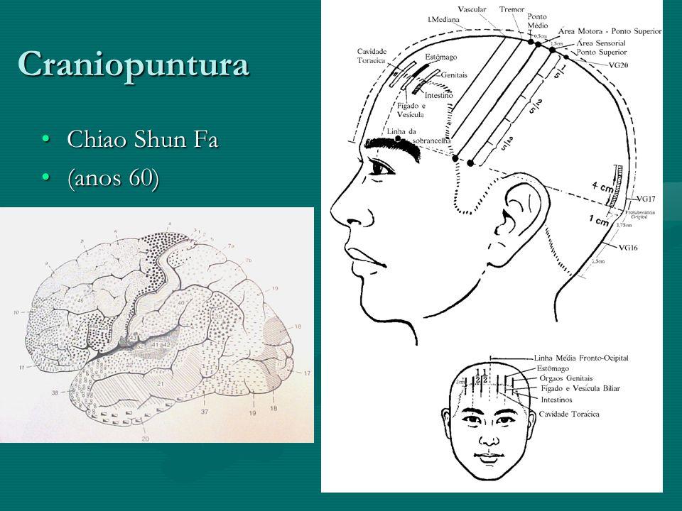 Craniopuntura Chiao Shun Fa (anos 60)