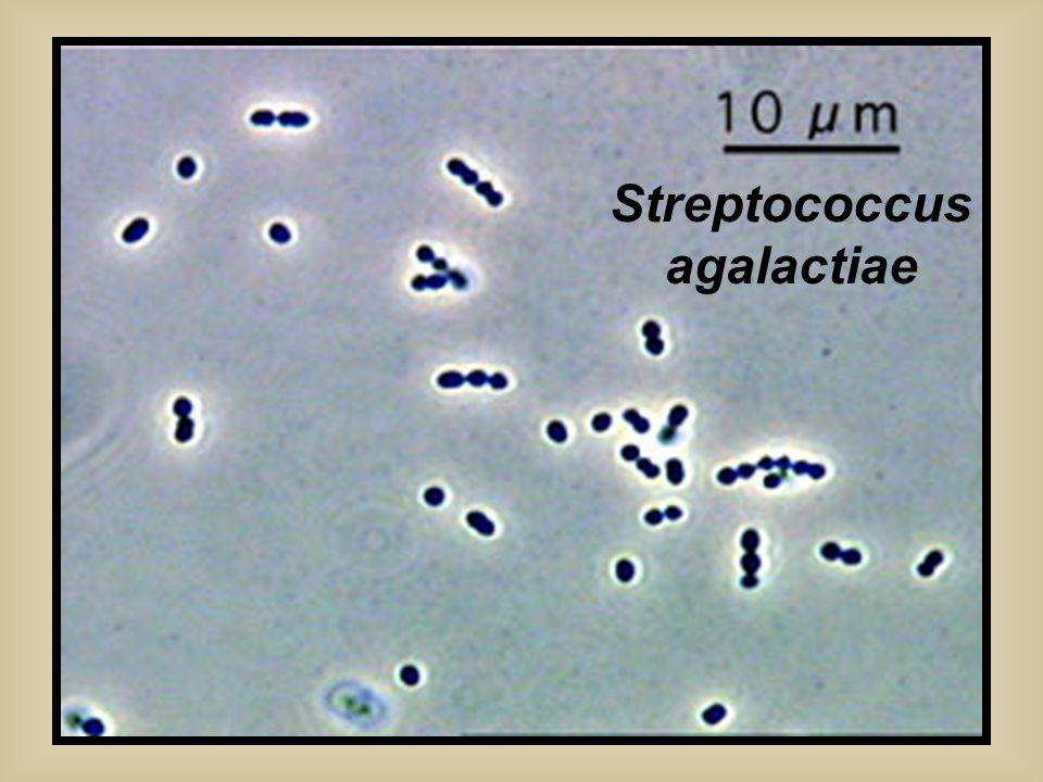 Streptococcus agalactiae