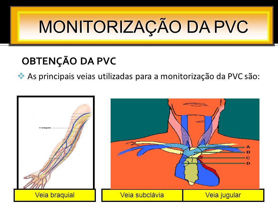MONITORIZAÇÃO DA PVC OBTENÇÃO DA PVC