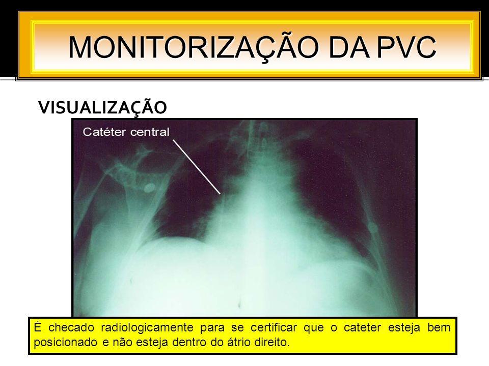 MONITORIZAÇÃO DA PVC VISUALIZAÇÃO