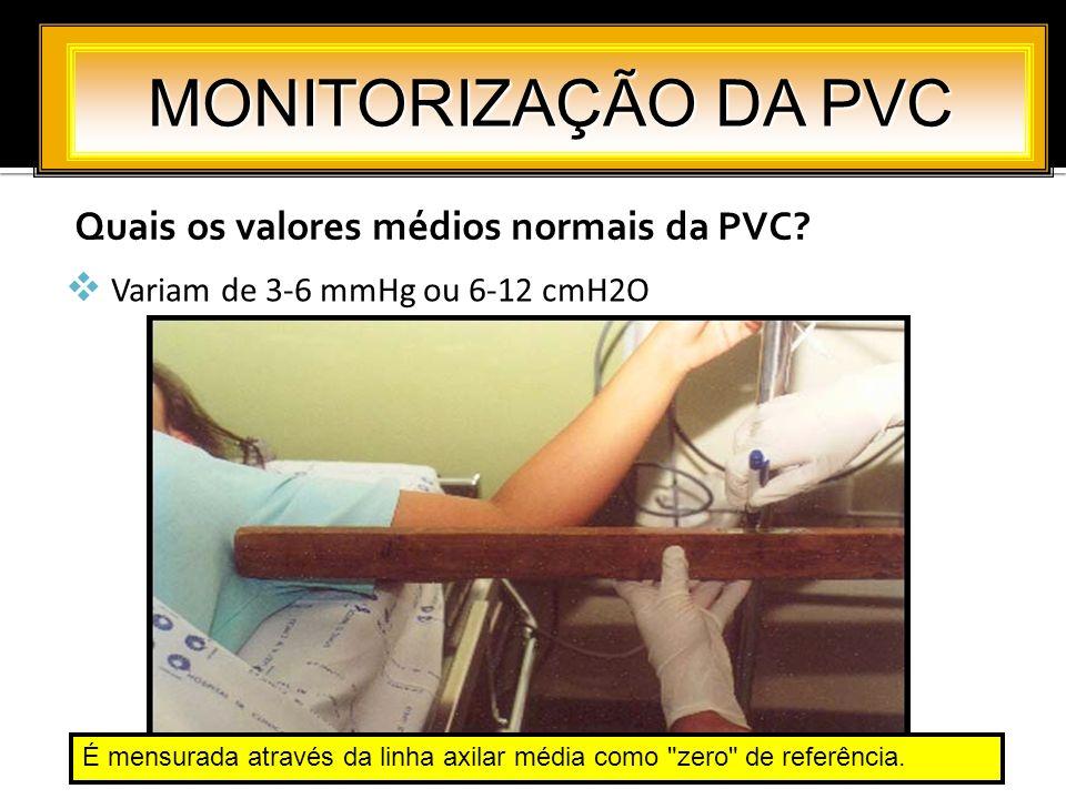 MONITORIZAÇÃO DA PVC Quais os valores médios normais da PVC
