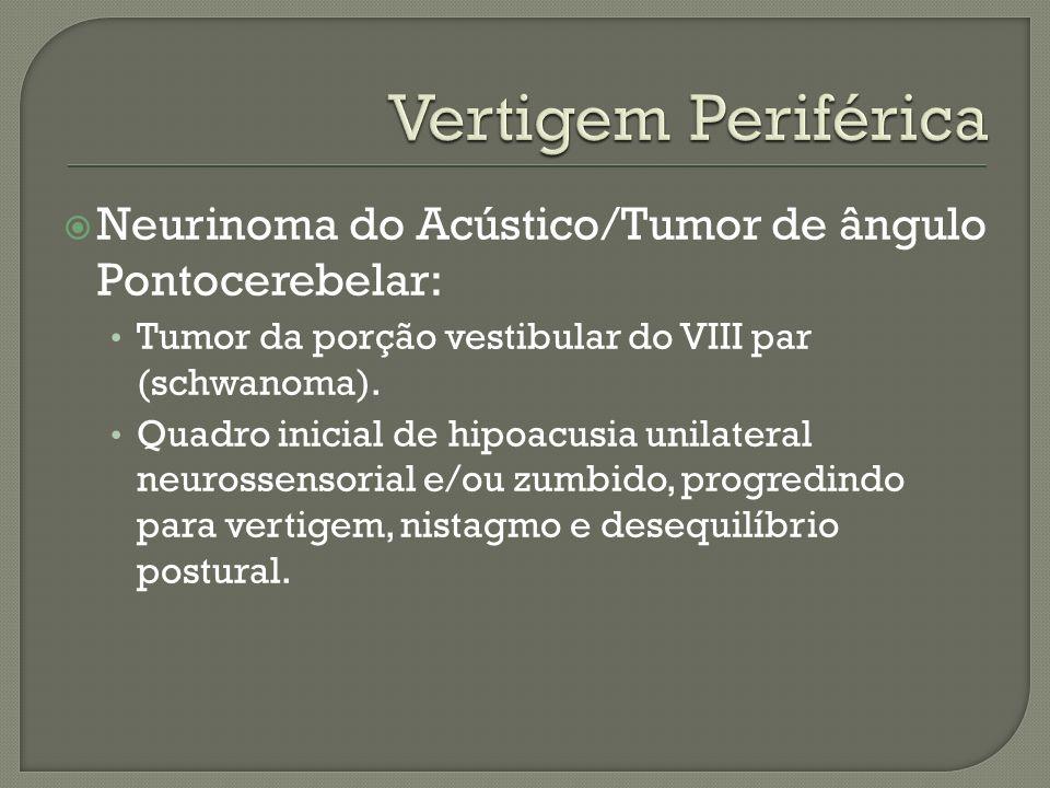 Vertigem Periférica Neurinoma do Acústico/Tumor de ângulo Pontocerebelar: Tumor da porção vestibular do VIII par (schwanoma).