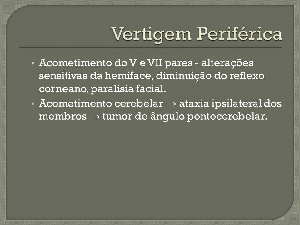 Vertigem Periférica Acometimento do V e VII pares - alterações sensitivas da hemiface, diminuição do reflexo corneano, paralisia facial.