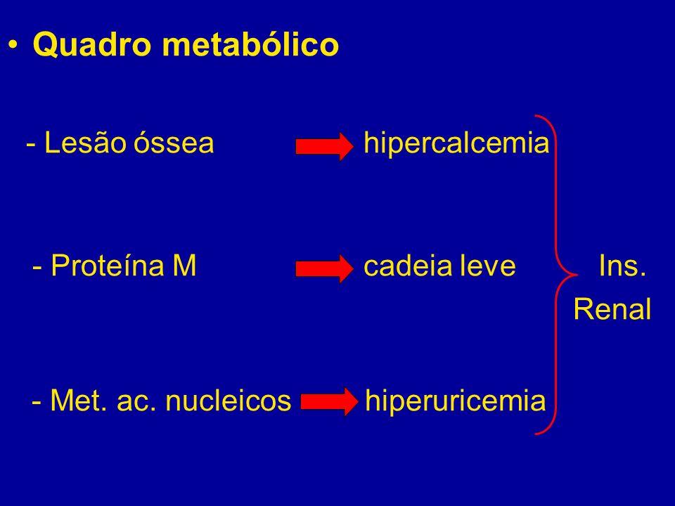 - Lesão óssea hipercalcemia