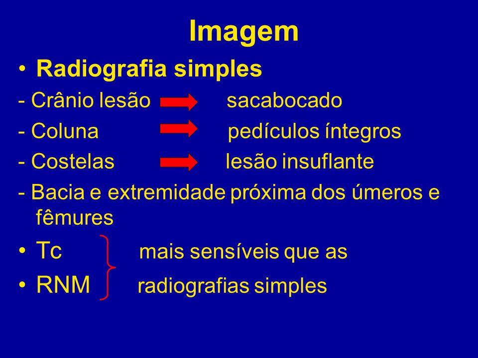 Tc mais sensíveis que as RNM radiografias simples