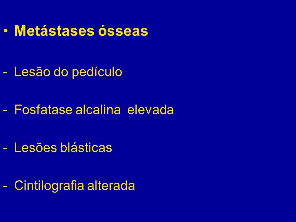 Metástases ósseas Lesão do pedículo Fosfatase alcalina elevada