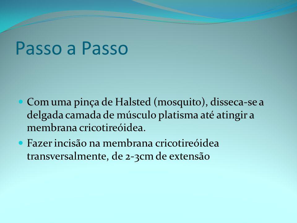 Passo a PassoCom uma pinça de Halsted (mosquito), disseca-se a delgada camada de músculo platisma até atingir a membrana cricotireóidea.