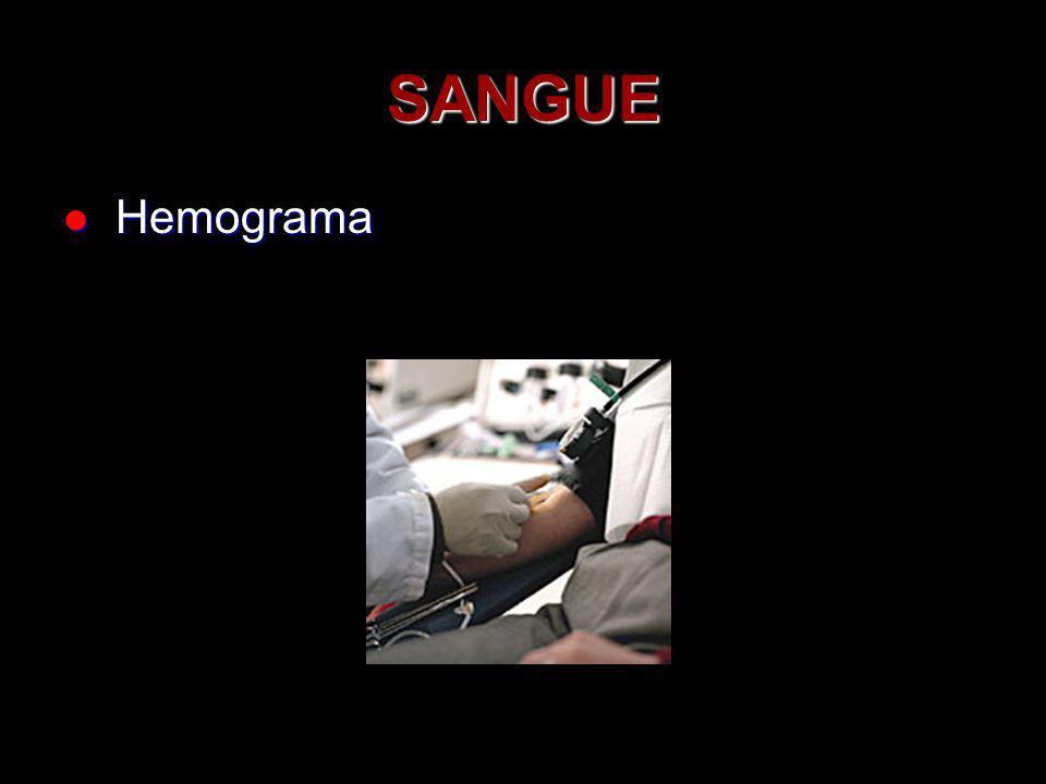 SANGUE Hemograma