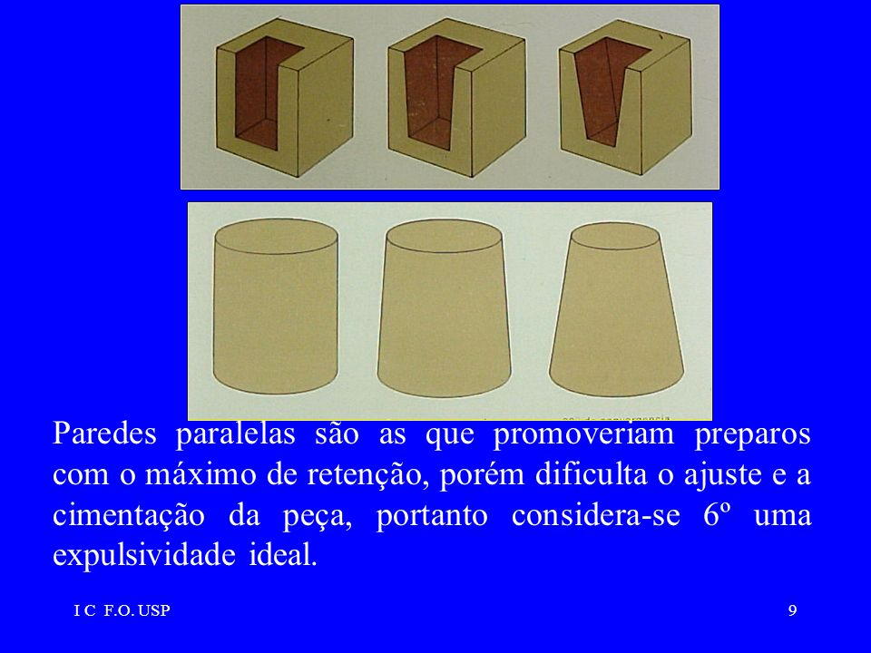 Paredes paralelas são as que promoveriam preparos com o máximo de retenção, porém dificulta o ajuste e a cimentação da peça, portanto considera-se 6º uma expulsividade ideal.