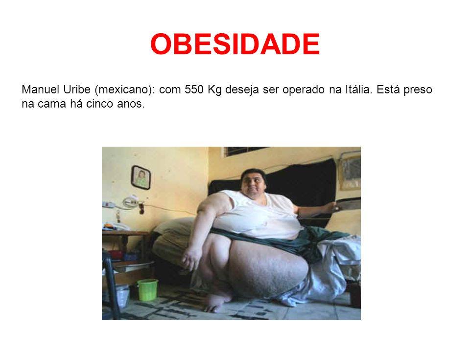 OBESIDADE Manuel Uribe (mexicano): com 550 Kg deseja ser operado na Itália.