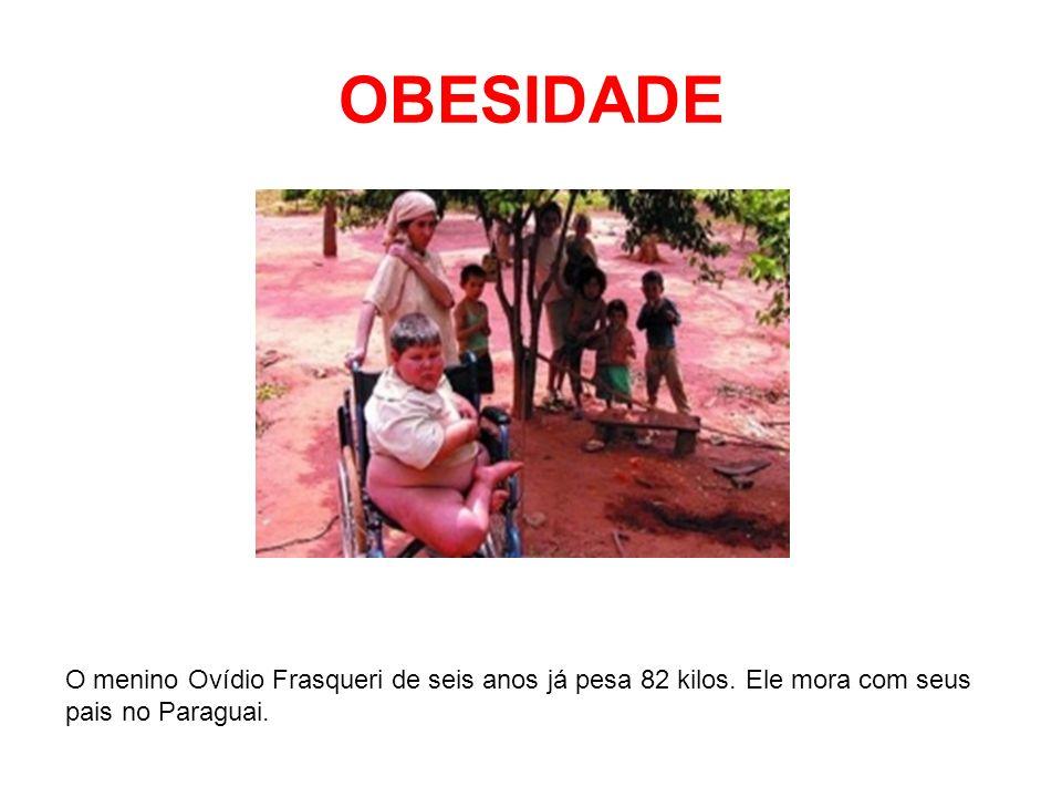 OBESIDADEO menino Ovídio Frasqueri de seis anos já pesa 82 kilos.