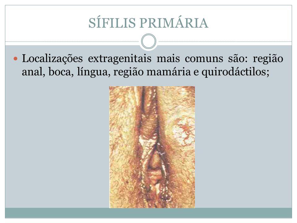 SÍFILIS PRIMÁRIALocalizações extragenitais mais comuns são: região anal, boca, língua, região mamária e quirodáctilos;