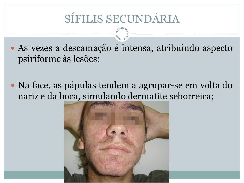 SÍFILIS SECUNDÁRIA As vezes a descamação é intensa, atribuindo aspecto psiriforme às lesões;