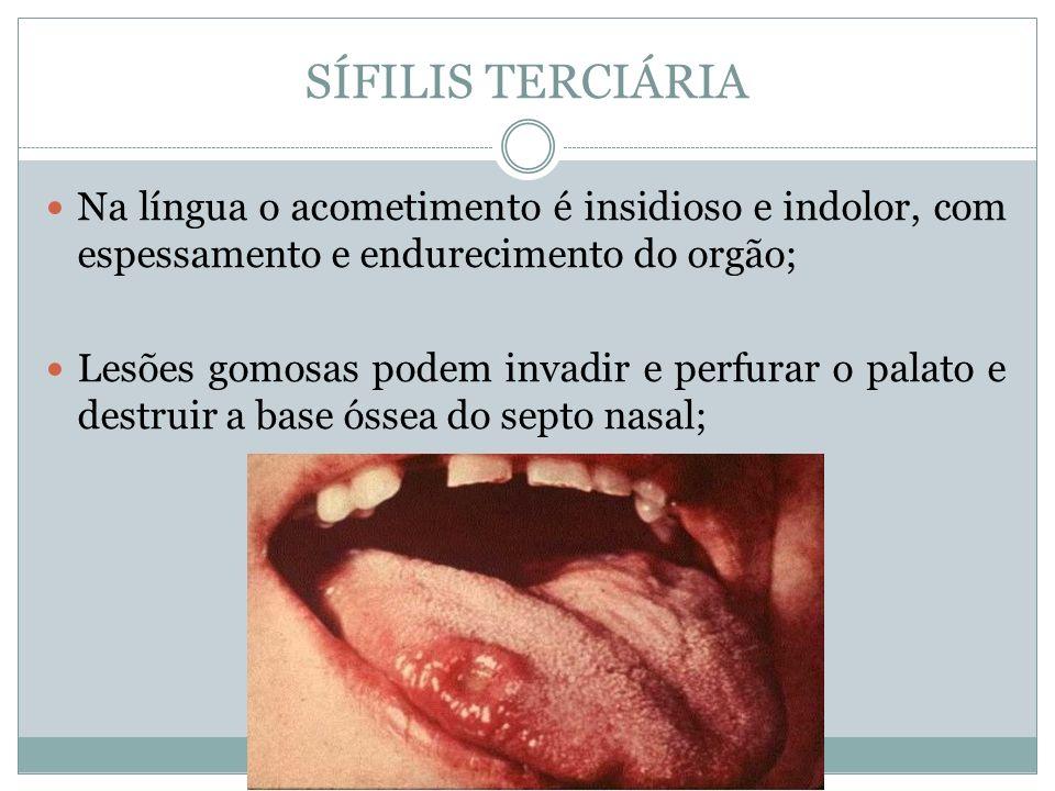 SÍFILIS TERCIÁRIA Na língua o acometimento é insidioso e indolor, com espessamento e endurecimento do orgão;