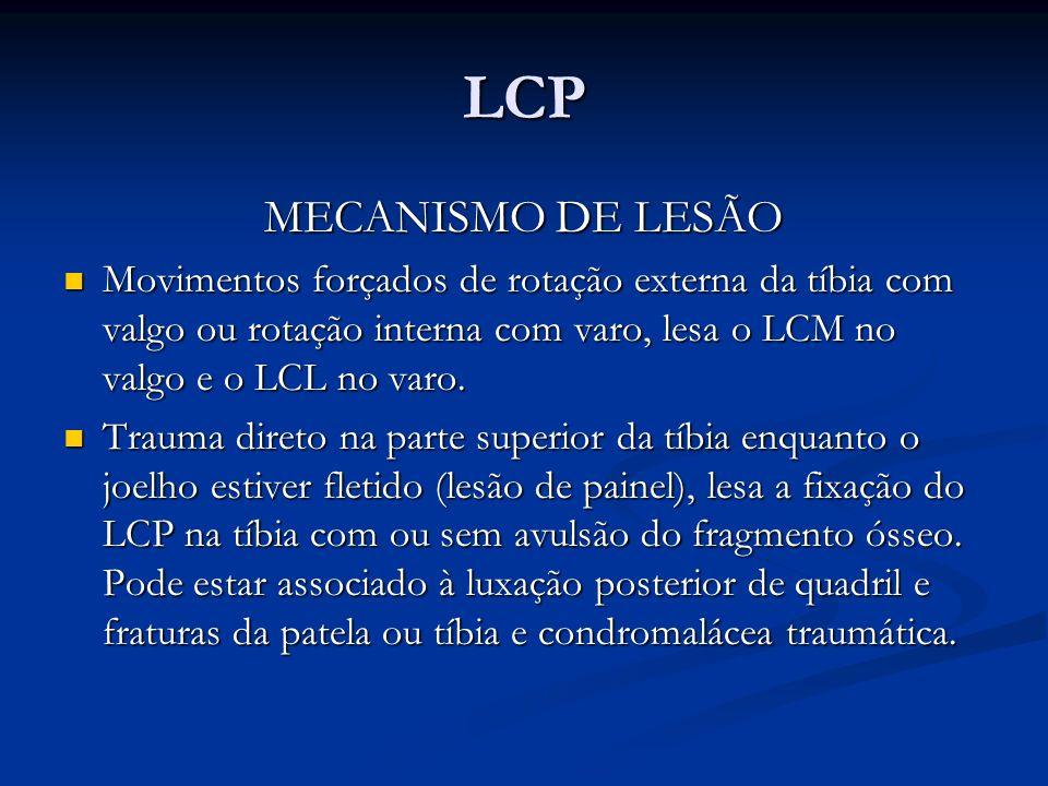 LCP MECANISMO DE LESÃO. Movimentos forçados de rotação externa da tíbia com valgo ou rotação interna com varo, lesa o LCM no valgo e o LCL no varo.