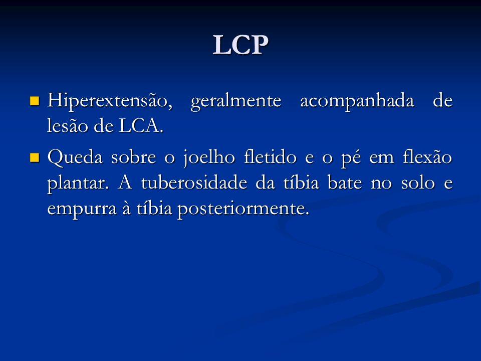 LCP Hiperextensão, geralmente acompanhada de lesão de LCA.