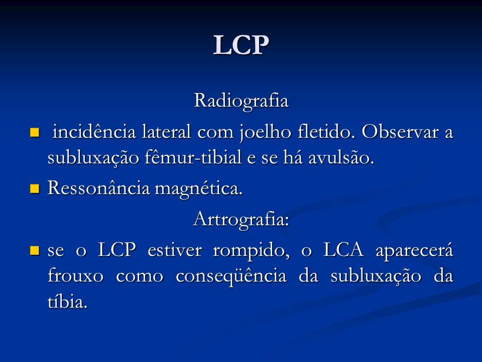 LCP Radiografia. incidência lateral com joelho fletido. Observar a subluxação fêmur-tibial e se há avulsão.
