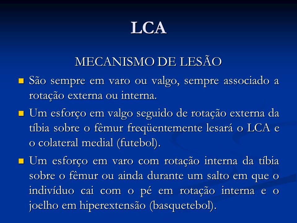 LCA MECANISMO DE LESÃO. São sempre em varo ou valgo, sempre associado a rotação externa ou interna.