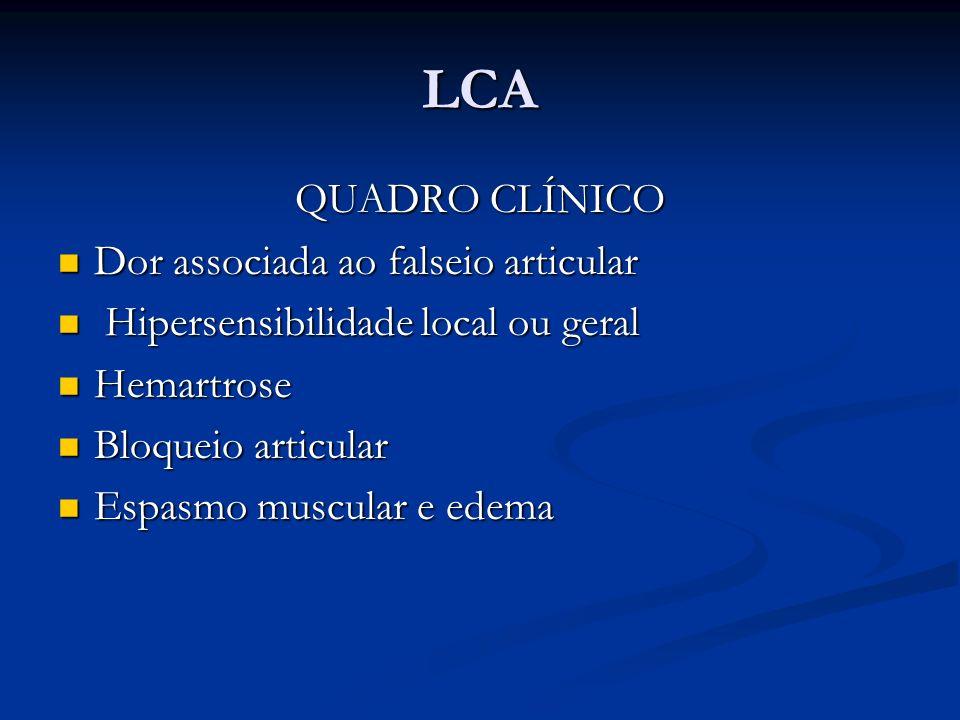 LCA QUADRO CLÍNICO Dor associada ao falseio articular