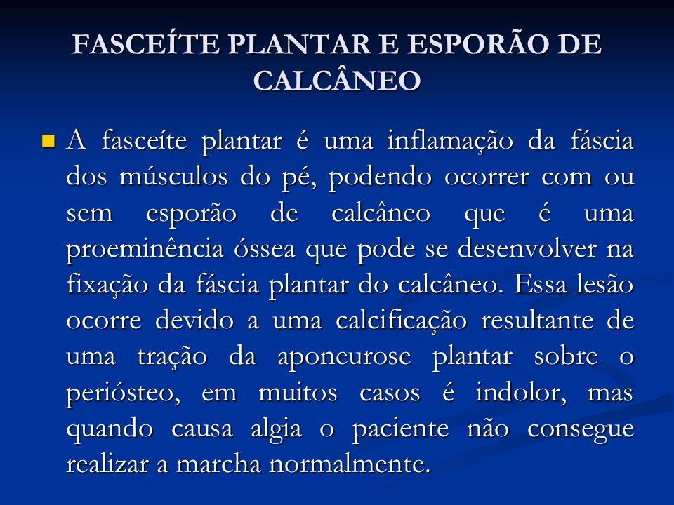 FASCEÍTE PLANTAR E ESPORÃO DE CALCÂNEO