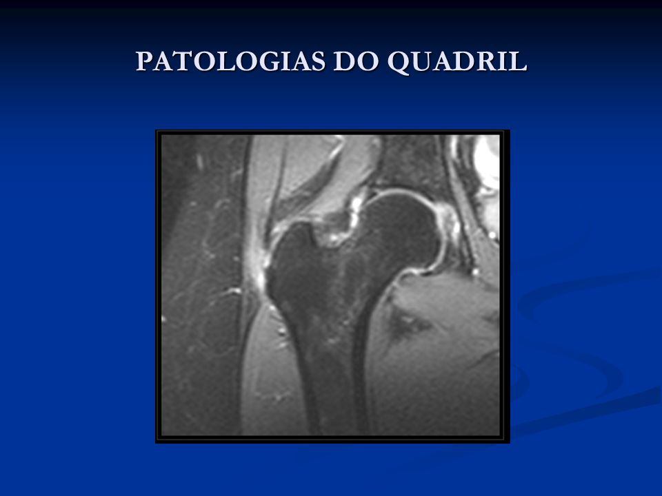 PATOLOGIAS DO QUADRIL