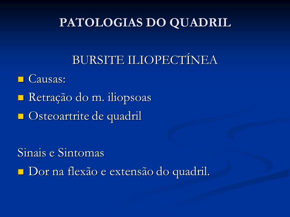 PATOLOGIAS DO QUADRIL BURSITE ILIOPECTÍNEA. Causas: Retração do m. iliopsoas. Osteoartrite de quadril.