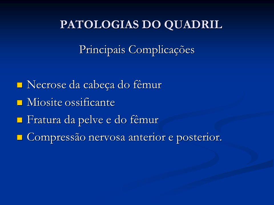 Principais Complicações