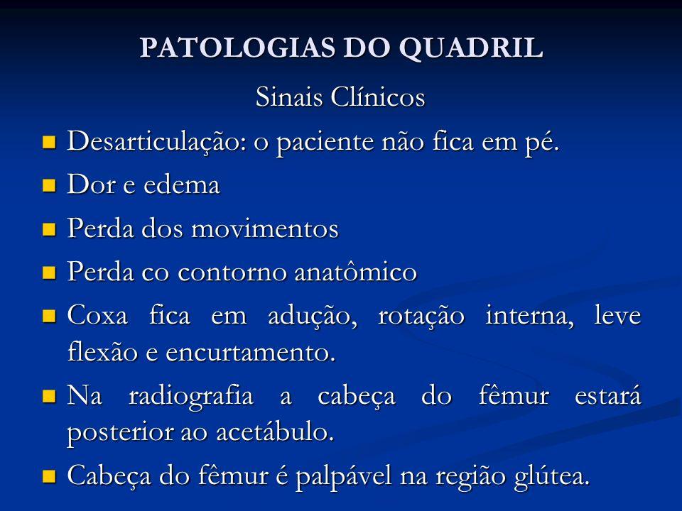 PATOLOGIAS DO QUADRIL Sinais Clínicos. Desarticulação: o paciente não fica em pé. Dor e edema. Perda dos movimentos.