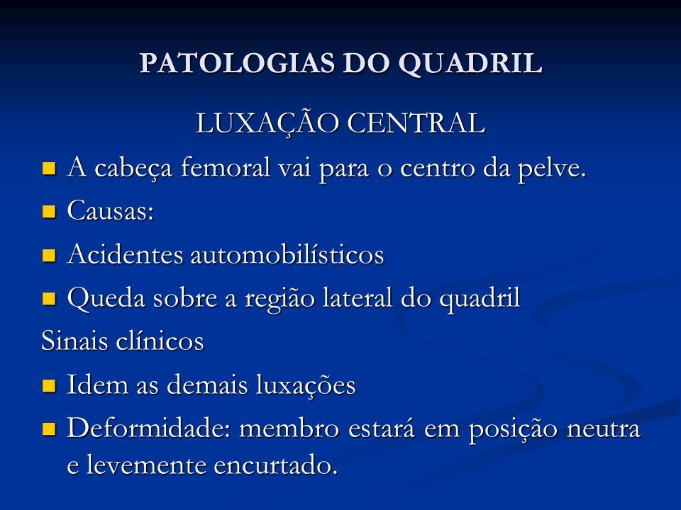 PATOLOGIAS DO QUADRIL LUXAÇÃO CENTRAL. A cabeça femoral vai para o centro da pelve. Causas: Acidentes automobilísticos.
