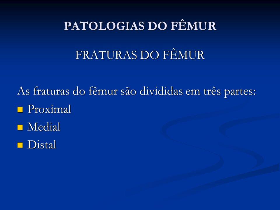 PATOLOGIAS DO FÊMUR FRATURAS DO FÊMUR. As fraturas do fêmur são divididas em três partes: Proximal.