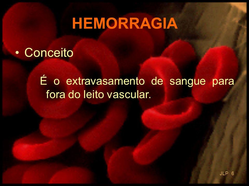 HEMORRAGIA Conceito É o extravasamento de sangue para fora do leito vascular. JLP