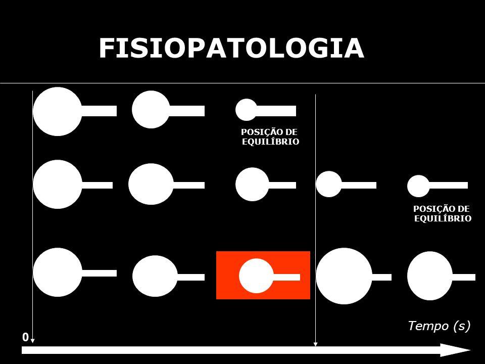 FISIOPATOLOGIA POSIÇÃO DE EQUILÍBRIO POSIÇÃO DE EQUILÍBRIO Tempo (s)