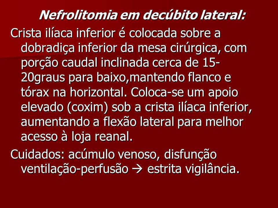 Nefrolitomia em decúbito lateral: