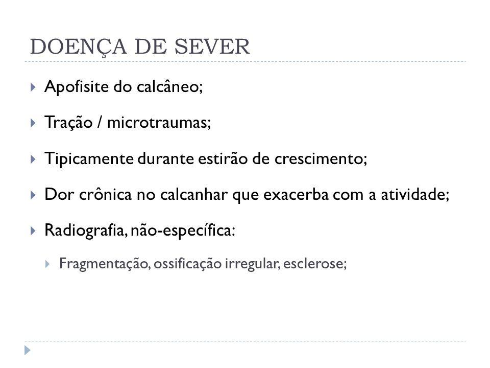 DOENÇA DE SEVER Apofisite do calcâneo; Tração / microtraumas;