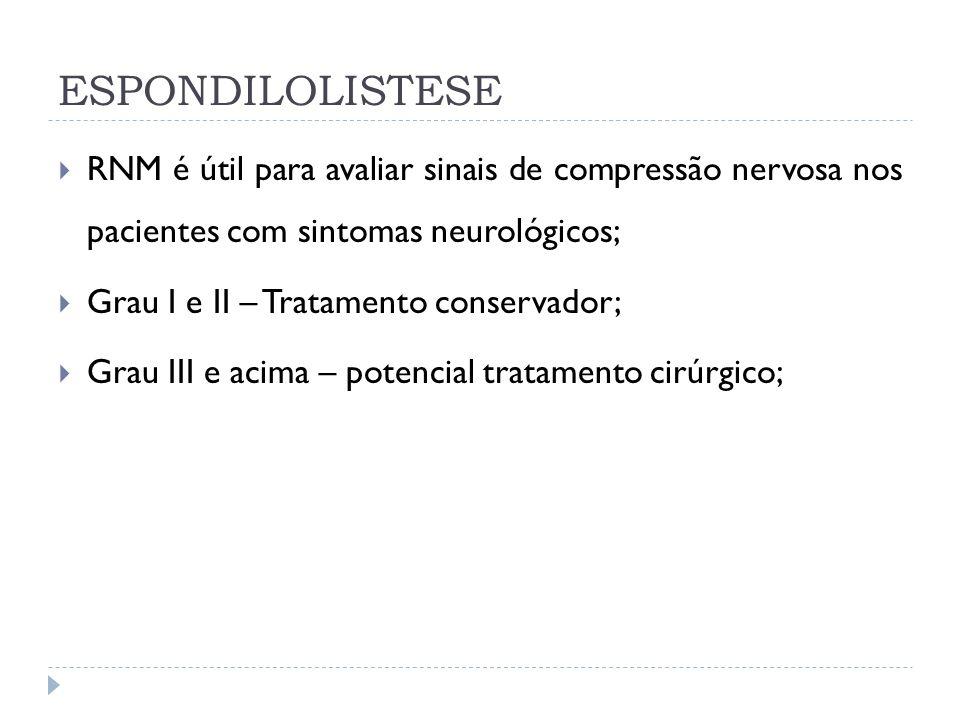 ESPONDILOLISTESE RNM é útil para avaliar sinais de compressão nervosa nos pacientes com sintomas neurológicos;
