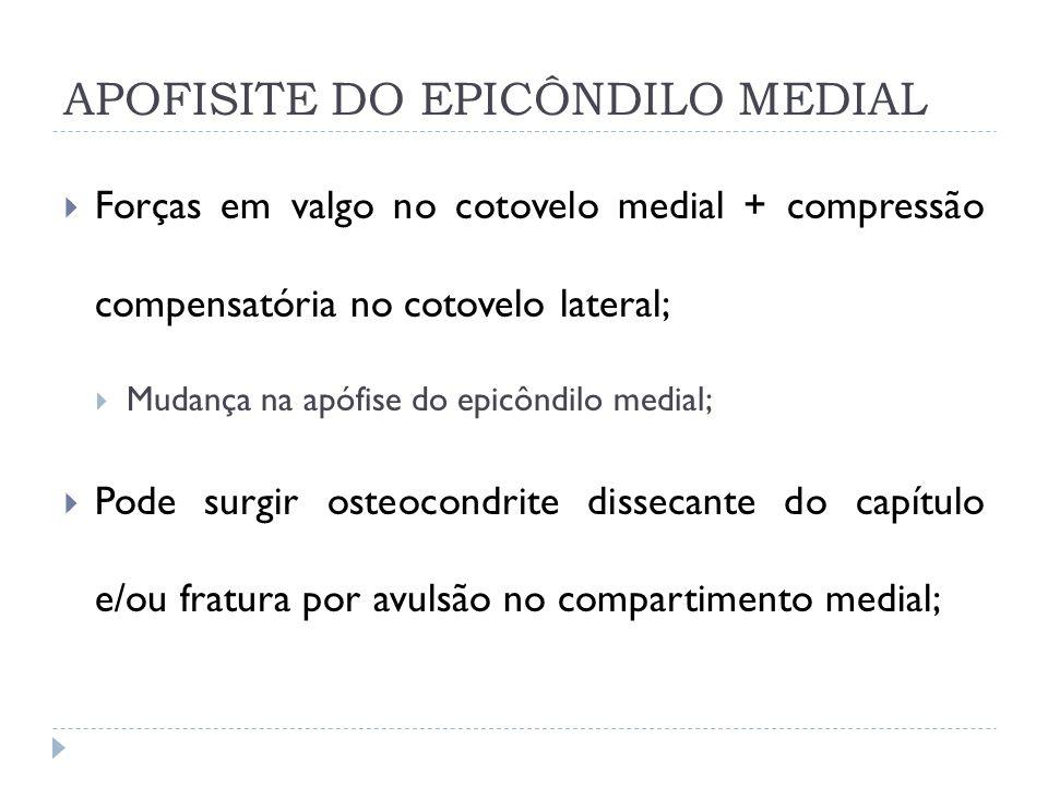 APOFISITE DO EPICÔNDILO MEDIAL