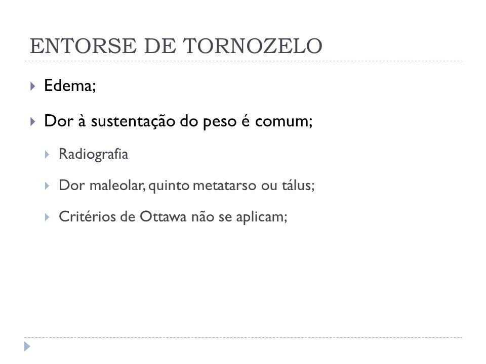 ENTORSE DE TORNOZELO Edema; Dor à sustentação do peso é comum;