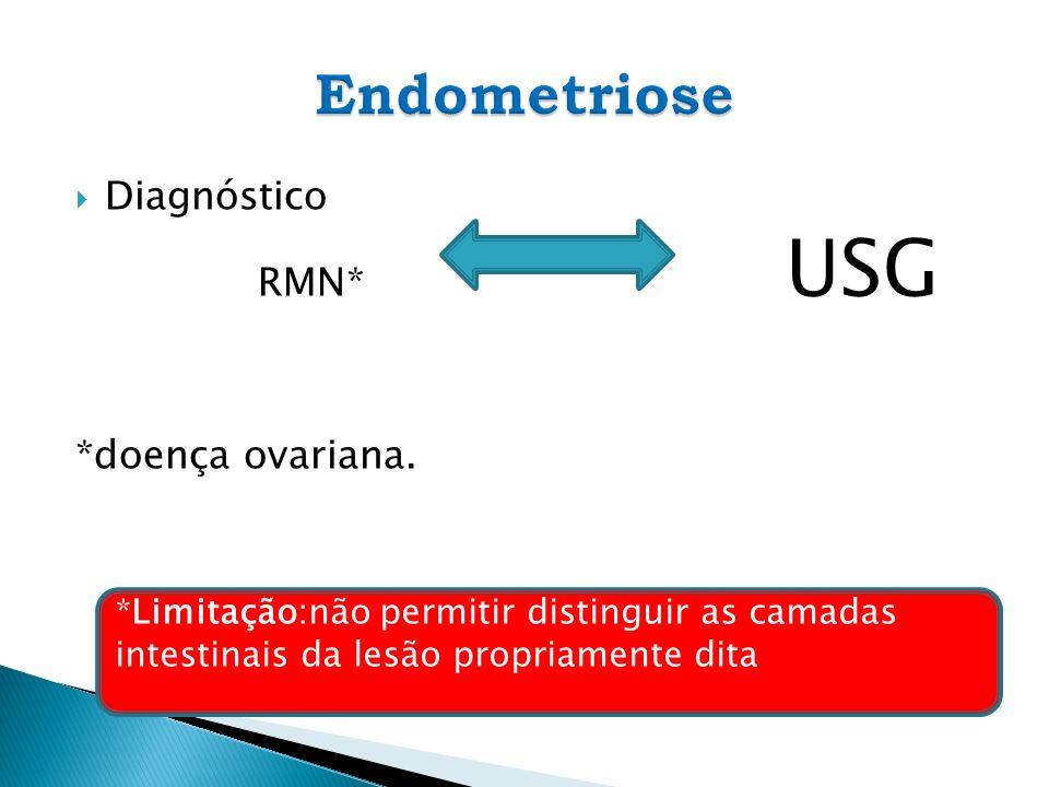 Endometriose Diagnóstico RMN* USG *doença ovariana.