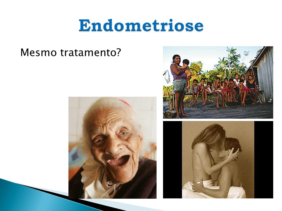 Endometriose Mesmo tratamento