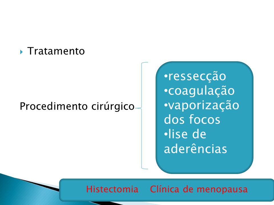 Histectomia Clínica de menopausa